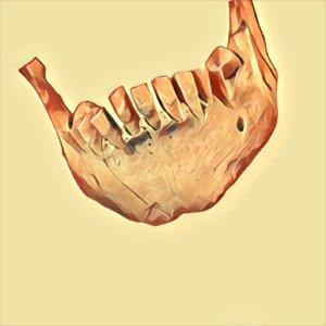 Traum Zahnverlust
