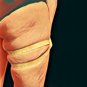 Traumdeutung Cellulite