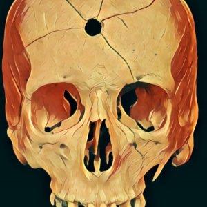 Kopfschuss