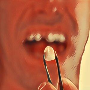 plombe aus zahn gefallen