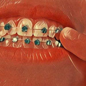 Traumdeutung Zahnspange