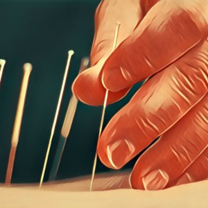 Traumdeutung Akupunktur