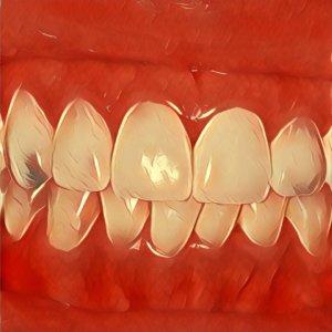 Traumdeutung Zahnreihe