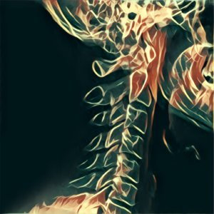 Traumdeutung Röntgenbild